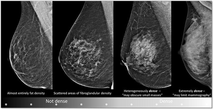 Breast-Density-700px